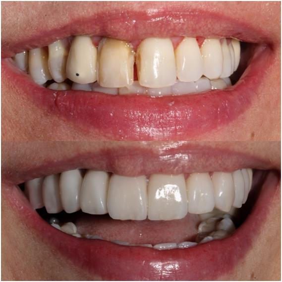 Momento dos preparos dentais / Laminados Cerâmicos caso finalizado.